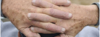 نگران لکه های قهوه ای روی پوست دست خود هستید