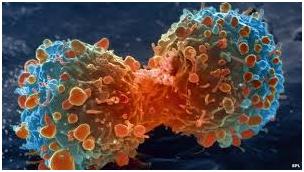 بروز سرطان و تاثیر آسپرین